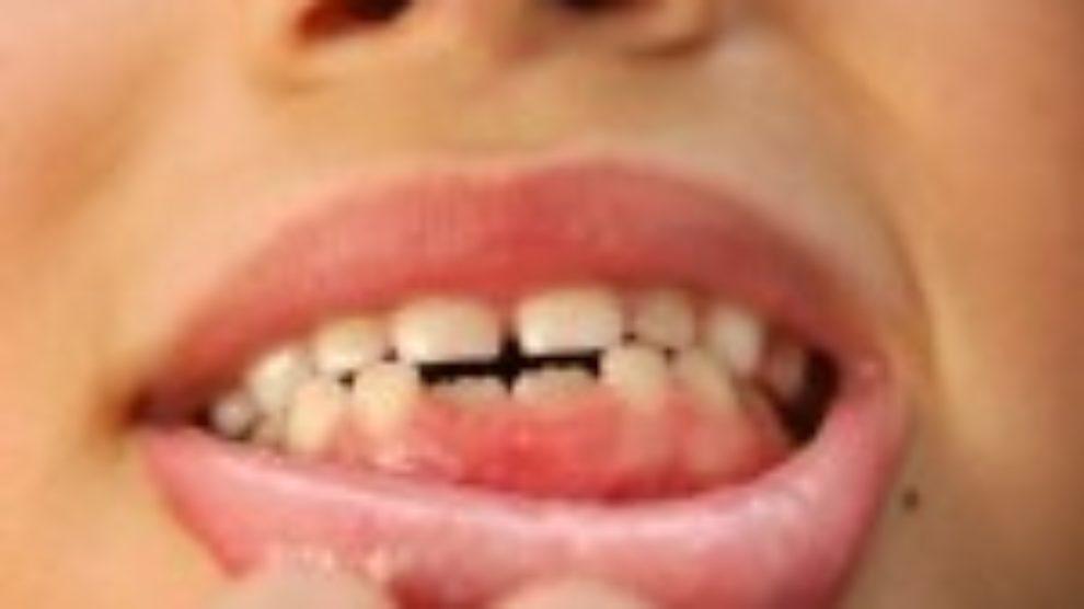 Nega zuba kod dece