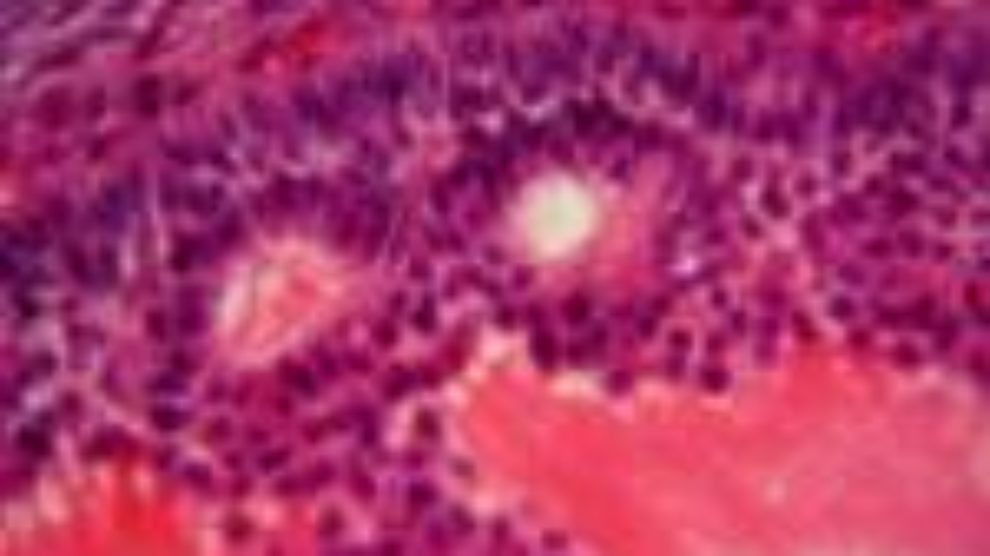 Šta su matične ćelije