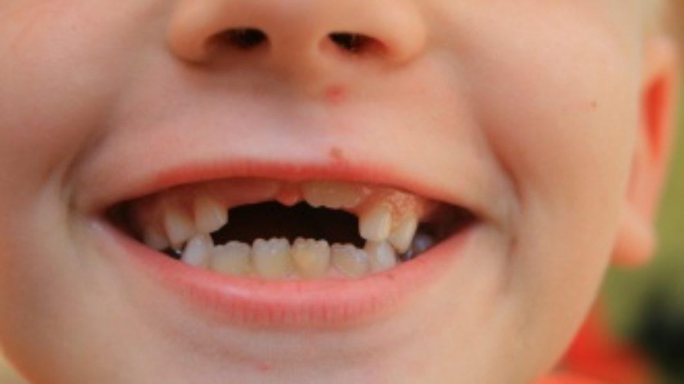 Nega mlečnih zuba