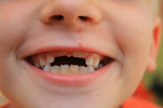 nega mlecnih zuba