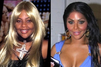 poznate zvezde pre i posle estetske hirurgije