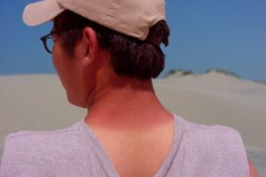 Smirite opekotine od sunca prirodnim putem