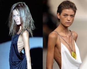 anoreksicni modeli