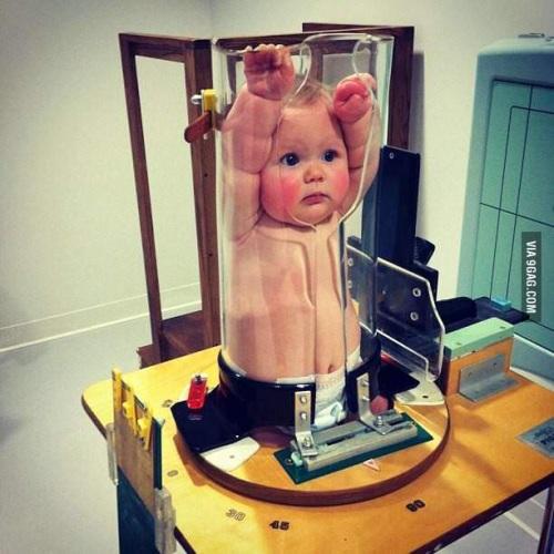 kako_se_radi_rentgen_za_bebe_v