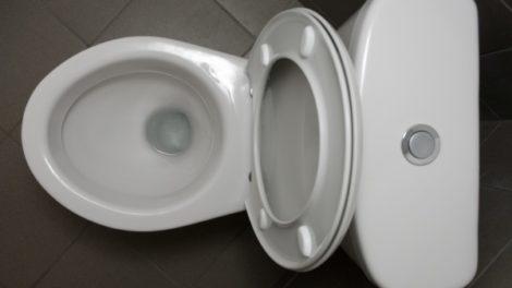 Šta boja urina govori o vašem zdravlju?