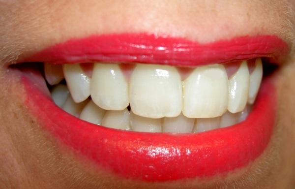 saveti_za_bolje_dentalno_zdravlje_v