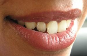 kako_do_blistavo_belih_zuba_m