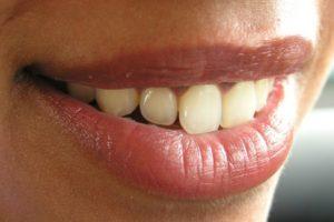 Kako do blistavo belih zuba