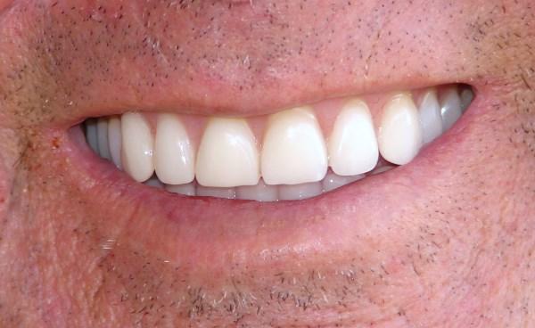 kako_do_blistavo_belih_zuba_v