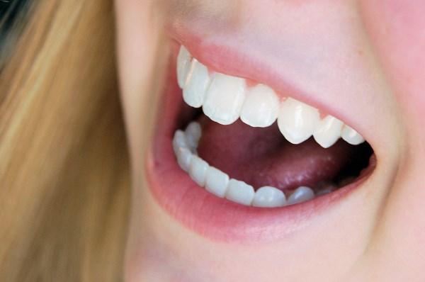 kako_do_blistavo_belih_zuba_v1