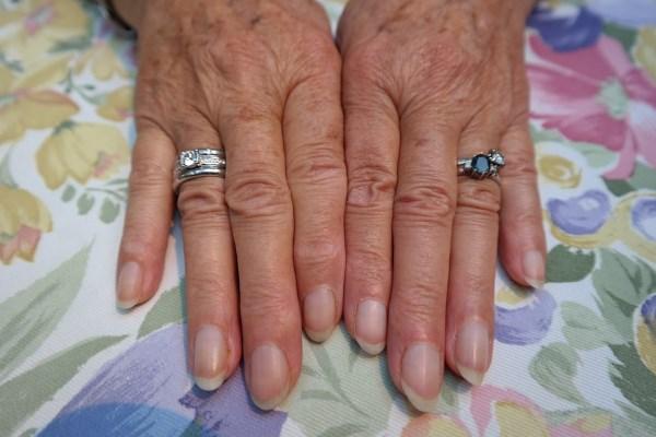 5-stvari-koje-nokti-otkrivaju-o-vašem-zdravlju-v