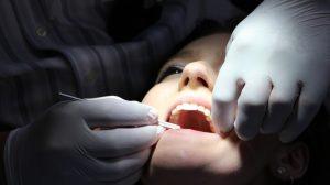 Saveti posle vađenja zuba