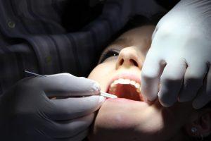 saveti-posle-vađenja-zuba-m