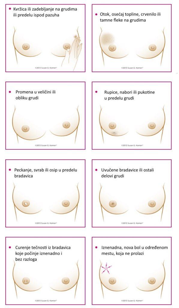 rak-dojke-znaci-upozorenja-v