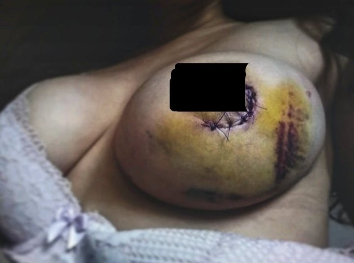 dojka nakon operacije tumora pregled glavu čuva