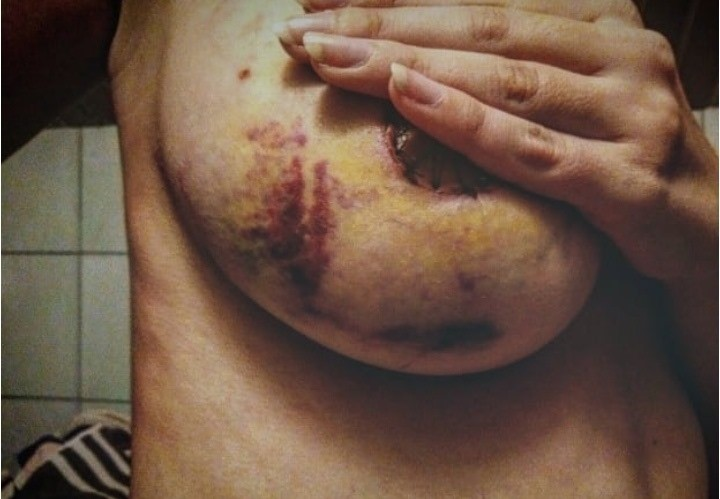 pregled glavu čuva - snimak nakon operacije dojke